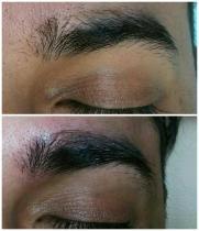 Microblading over brow scar