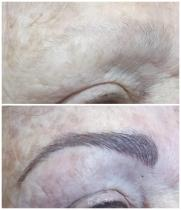 Microblading brows for cancer patient